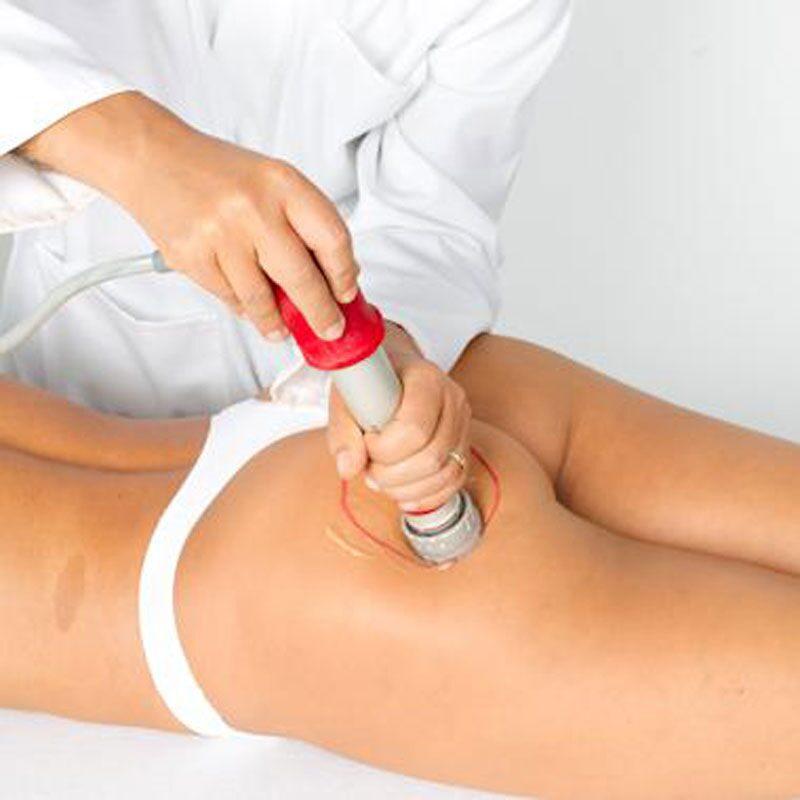 Ударно волновая терапия от целлюлита